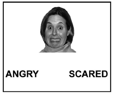 How does your amygdala respond when deciding what emotion this woman is feeling? From Figure 1 of Cresswell et al., 2010. Copyright American Psychomatic Society.